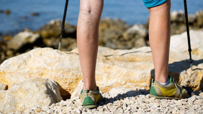Wie die Schuhe von gribka die Füsse zu bearbeiten